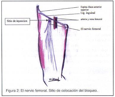 Bloqueo femoral tres en uno para cirugía de fractura ...