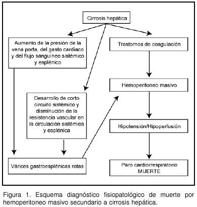 Causas varices esplénicas