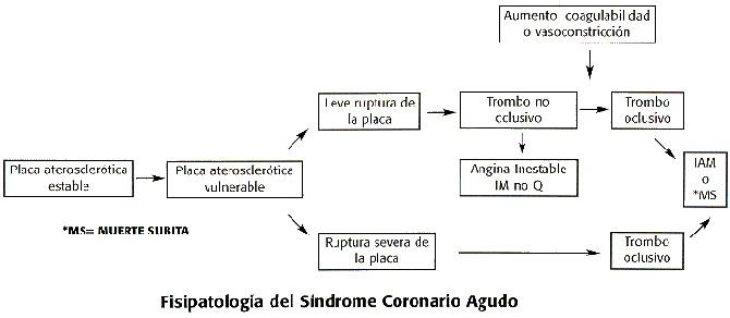 Manejo actual del síndrome coronario agudo, primera parte: infarto ...