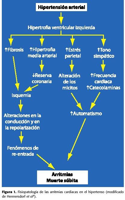 Prevención de la fibrilación auricular en el paciente hipertenso