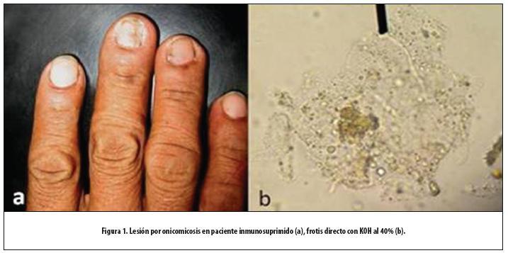 La limpieza dura de las uñas al hongo