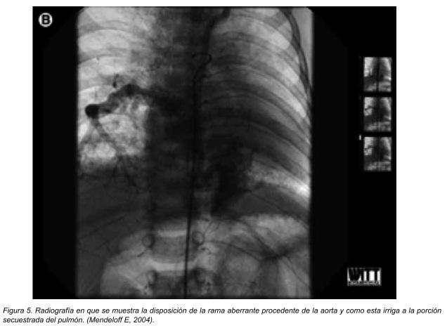 agenesia pulmonar tipo iv