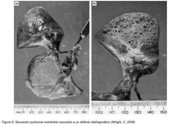 Embriología del desarrollo de los bronquios y el parénquima pulmonar