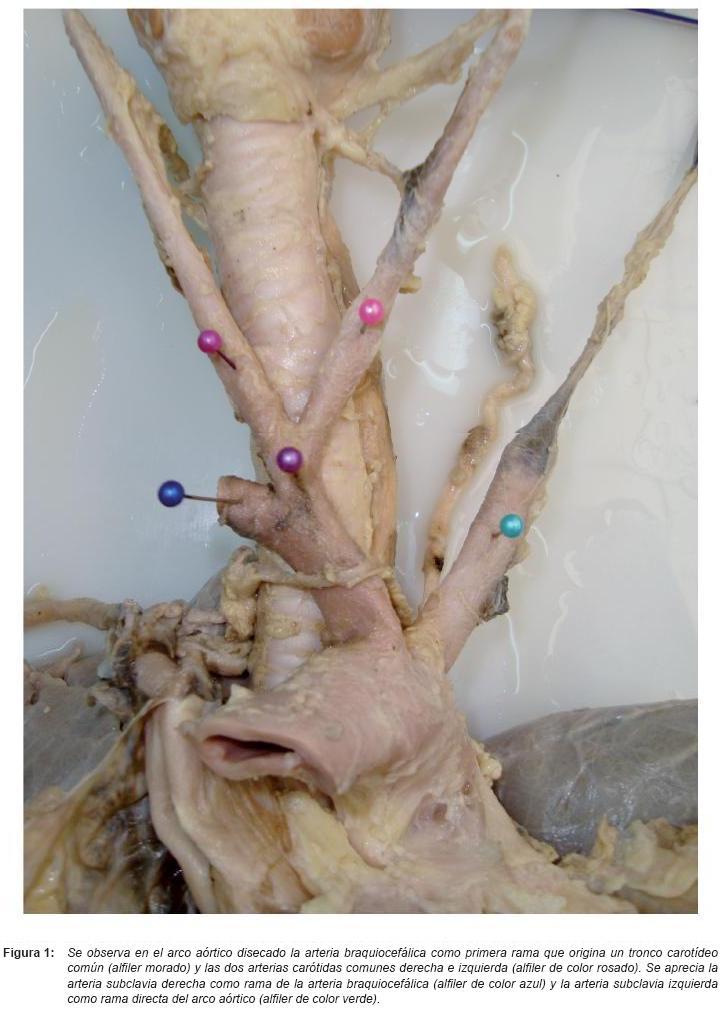 Variante anatómica: Tronco Carotídeo Común o Truncus Bicaroticus
