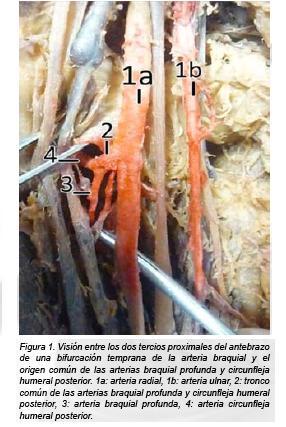 Origen y morfología de la arteria braquial profunda en 14 cadáveres ...
