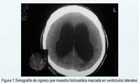 Hidrocefalia en resonancia magnética cerebral