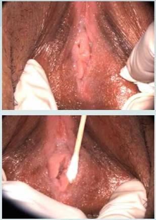Humano labios genitales papiloma