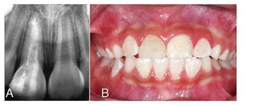 Manejo de complicación postraumática dental  Informe de caso