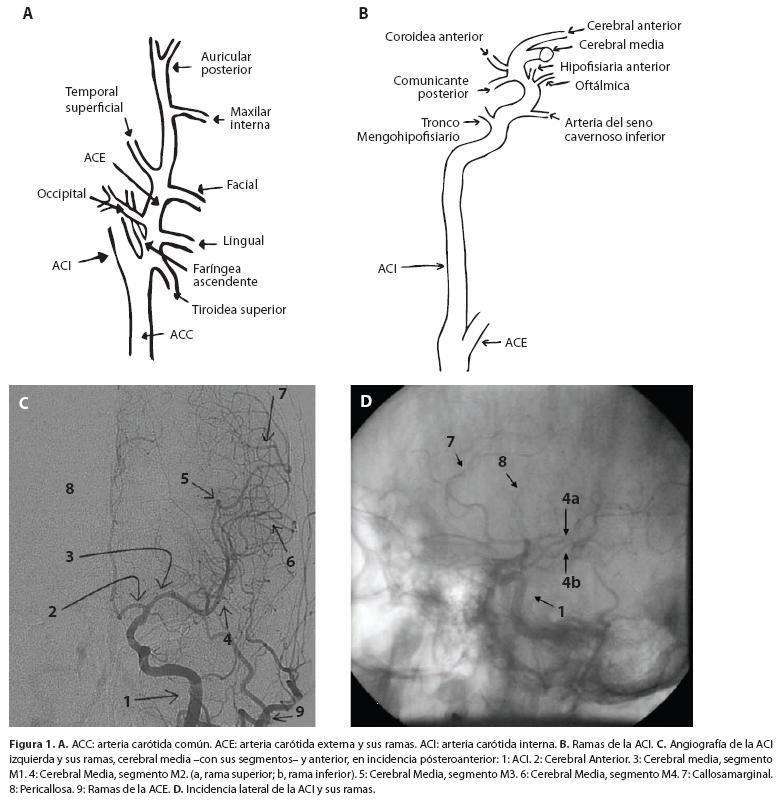 Anatomía básica cerebral para el cardiólogo intervencionista
